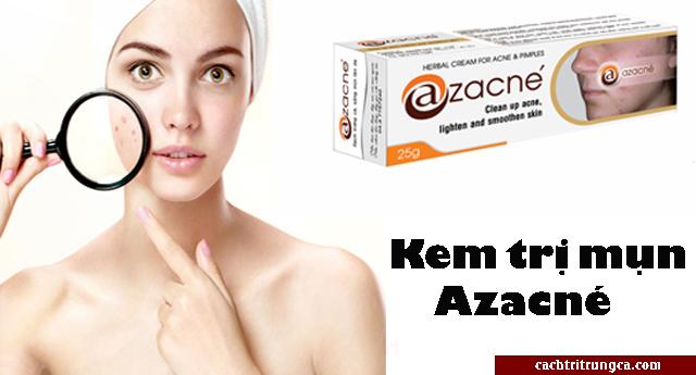 trị mụn bằng thêm Azacne