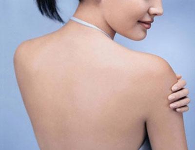 Image result for Cách điều trị mụn ở trên lưng