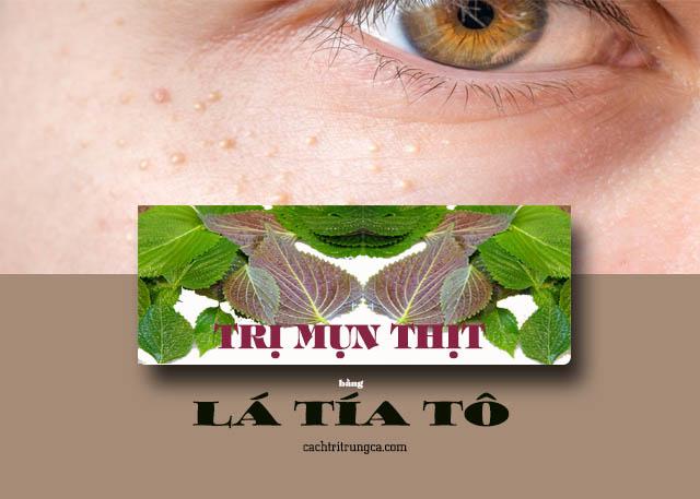chữa mụn thịt quanh mắt bằng lá tía tô