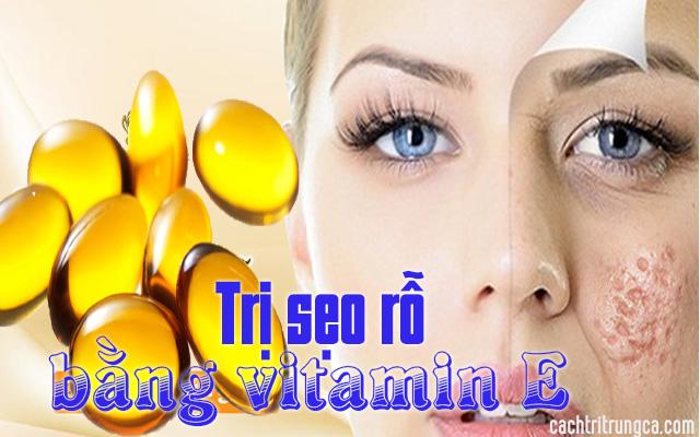 vitamin E trị sẹo rỗ