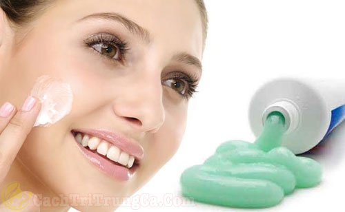 Kem đánh răng trị vết thâm mụn