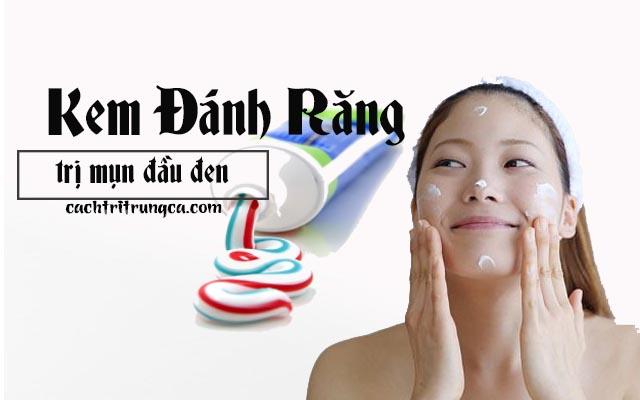 Dùng kem đánh răng làm phương pháp điều trị mụn đầu đen