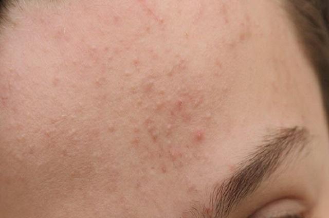 Nguyên nhân gây ra mụn ẩn dưới da