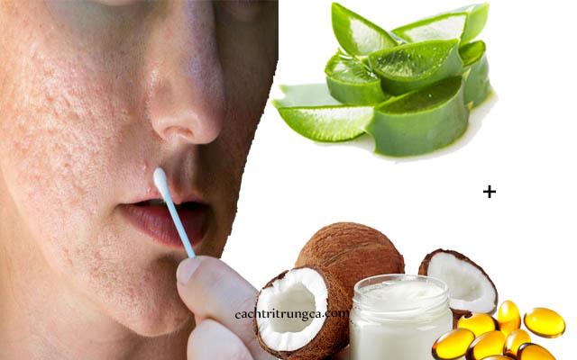 trị mụn bằng nha đam và vitamin e