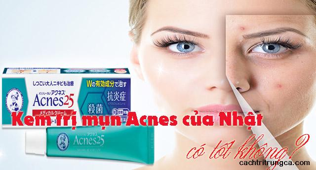 kem trị mụn acnes có hiệu quả