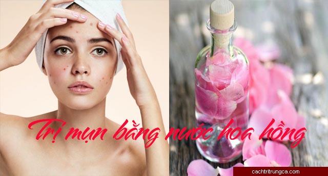 nước hoa hồng trị mụn - dùng nước hoa hồng có bị mụn không