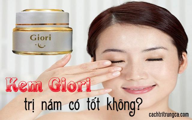 trị tàn nhang bằng kem Giori