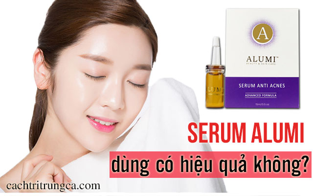 serum alumi trị mụn có tốt không