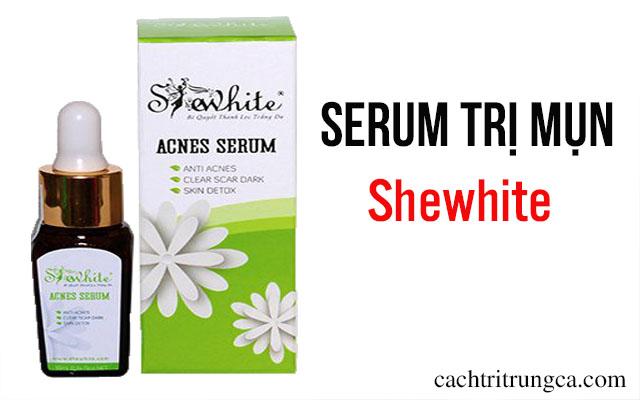 trị mụn bằng serum
