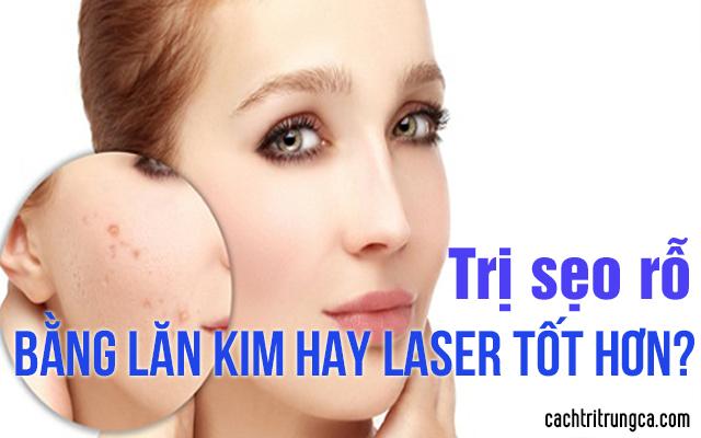 trị sẹo rỗ bằng lăn kim hay laser tốt hơn
