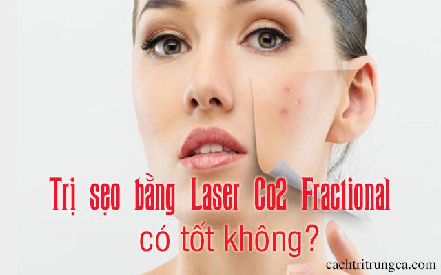 trị sẹo mụn bằng laser co2 fractional - trị sẹo rỗ bằng laser fractional co2 có tốt không