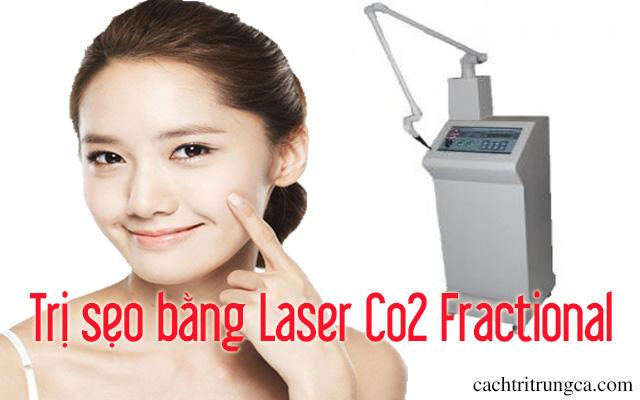 điều trị sẹo lồi bằng laser co2 - trị sẹo lồi bằng công nghệ laser co2 fractional - trị sẹo lõm bằng laser co2
